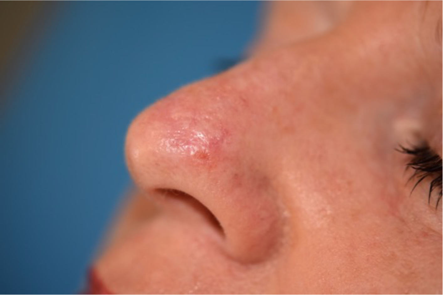 Pink Lesion In The Nose Skin Cancer Blog