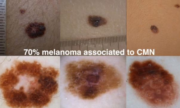 skin cancer update MAY18