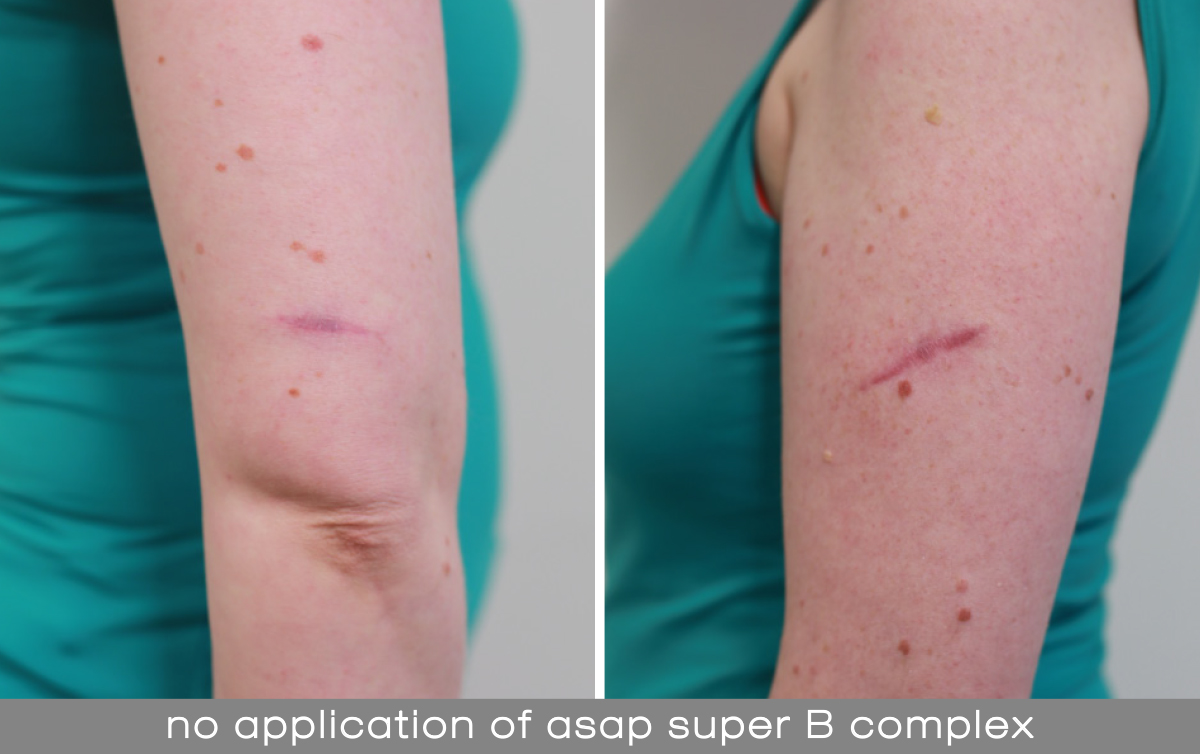 Minimising Scarring Post Bcc Removal Skin Cancer Courses Blog